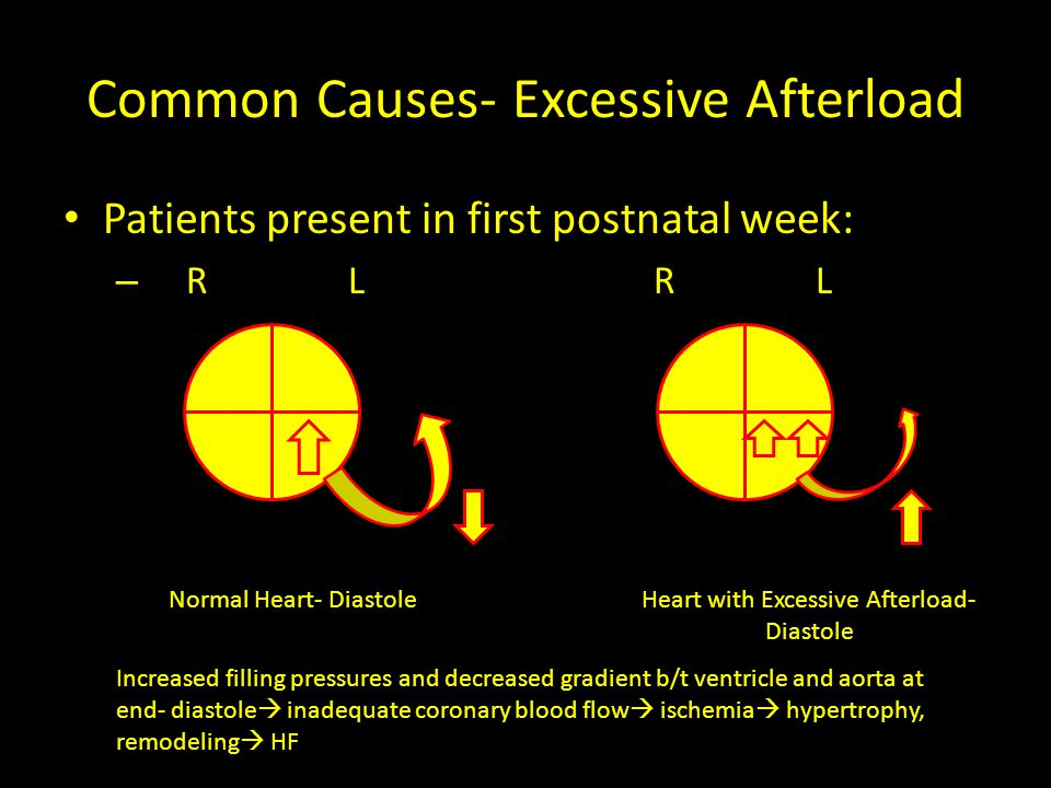 Common Causes- Excessive Afterload