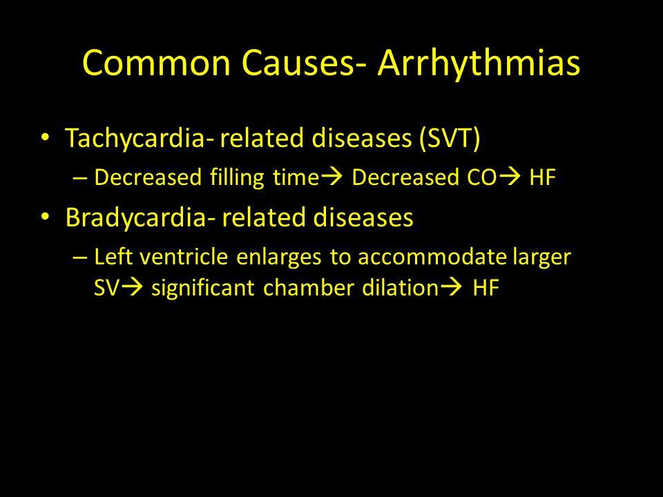 Common Causes- Arrhythmias