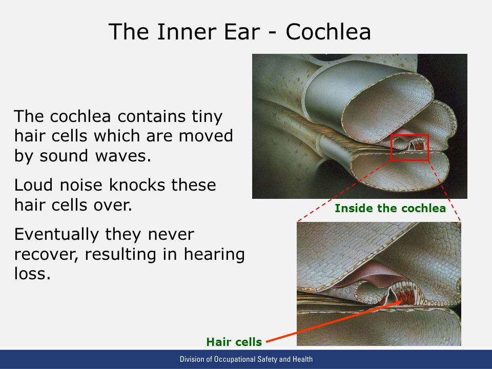 The Inner Ear - Cochlea The cochlea contains tiny hair cells which are moved by sound waves. Loud noise knocks these hair cells over.