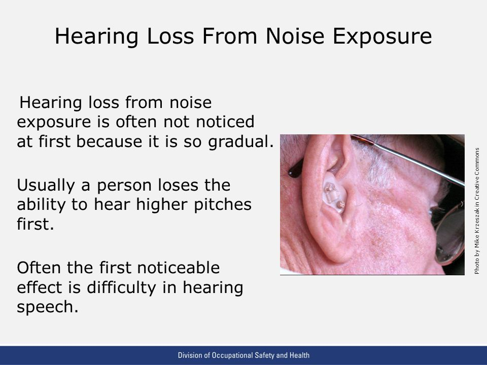 Hearing Loss From Noise Exposure