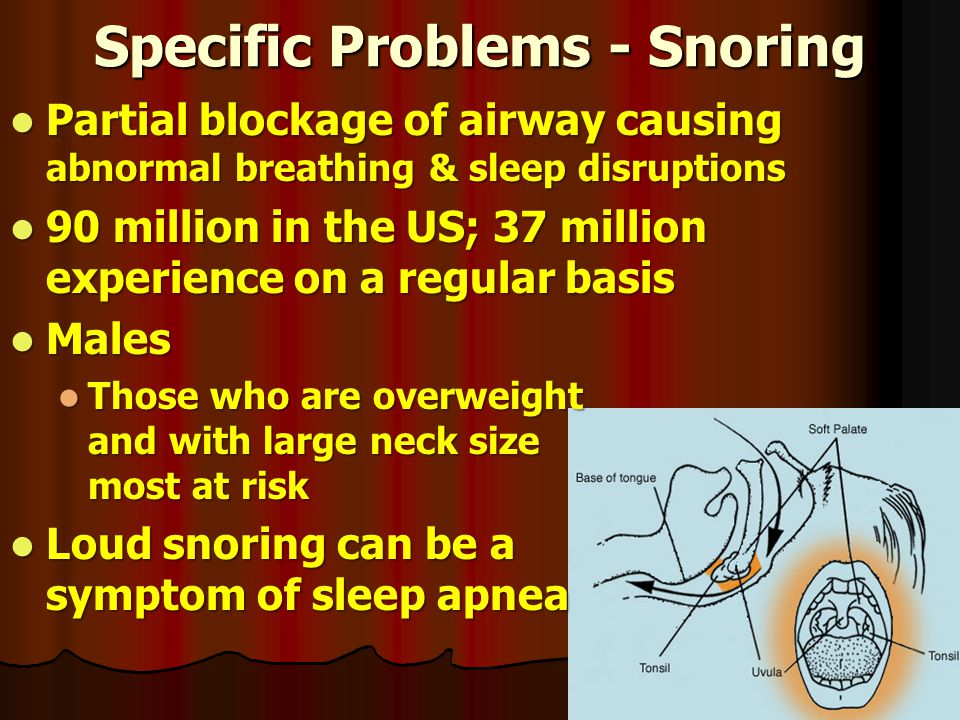 Specific Problems - Snoring