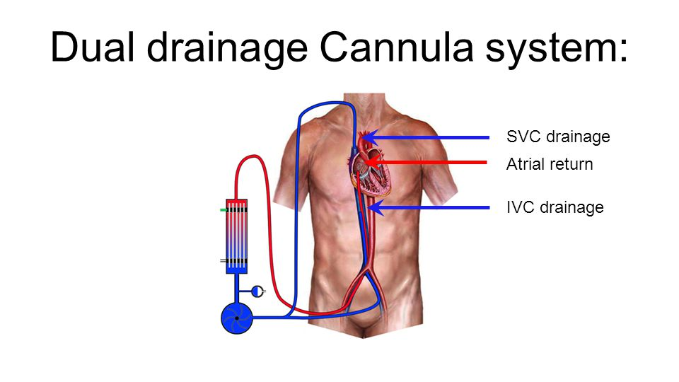Dual drainage Cannula system: