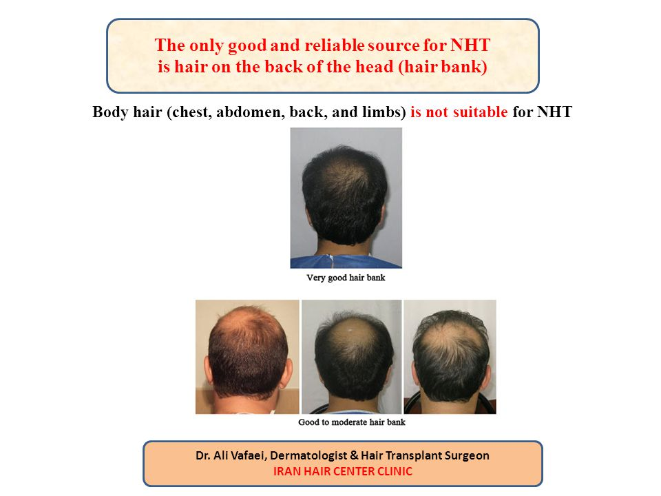 The only good and reliable source for NHT is hair on the back of the head (hair bank)