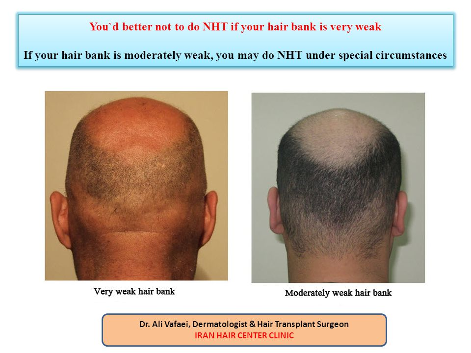 You`d better not to do NHT if your hair bank is very weak If your hair bank is moderately weak, you may do NHT under special circumstances