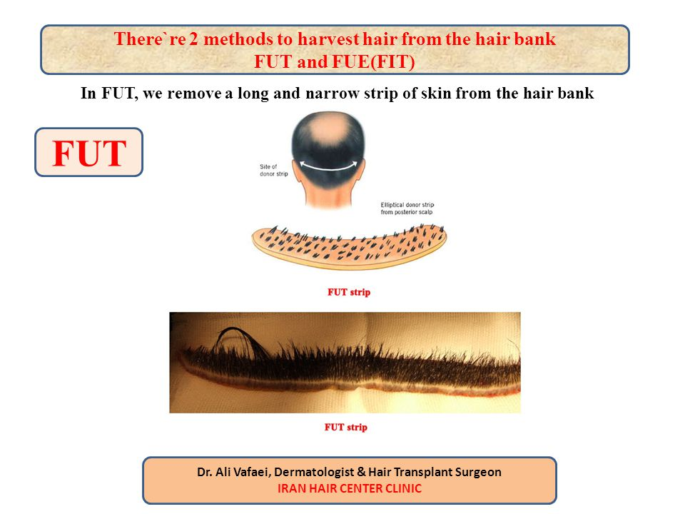 FUT There`re 2 methods to harvest hair from the hair bank