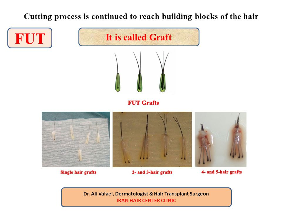 Cutting process is continued to reach building blocks of the hair