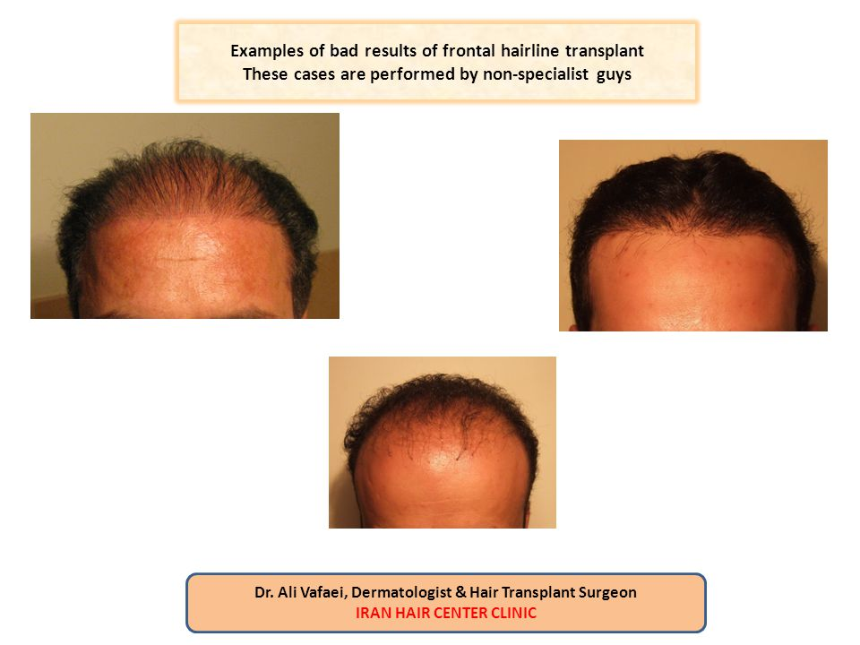 Examples of bad results of frontal hairline transplant These cases are performed by non-specialist guys