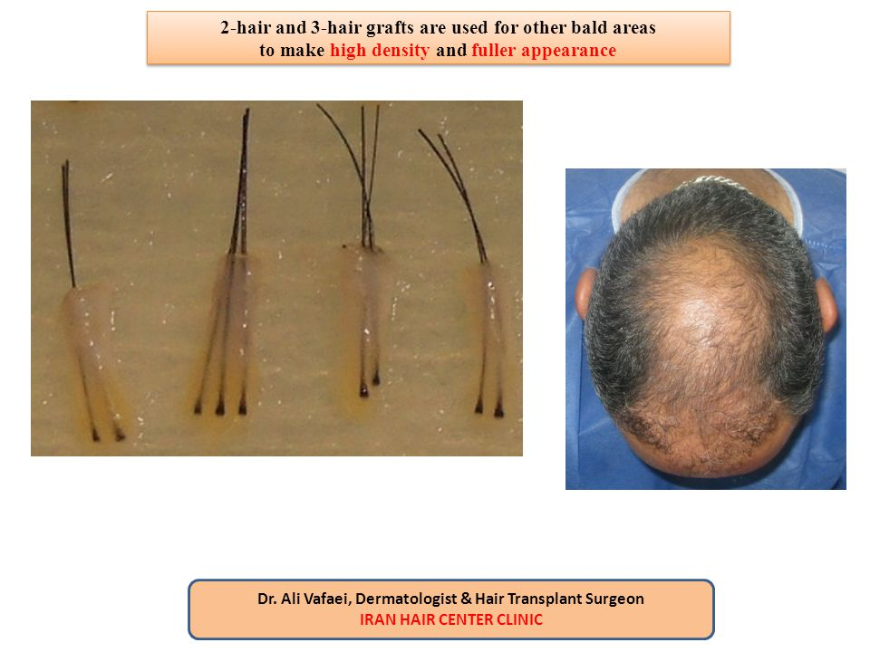 2-hair and 3-hair grafts are used for other bald areas to make high density and fuller appearance