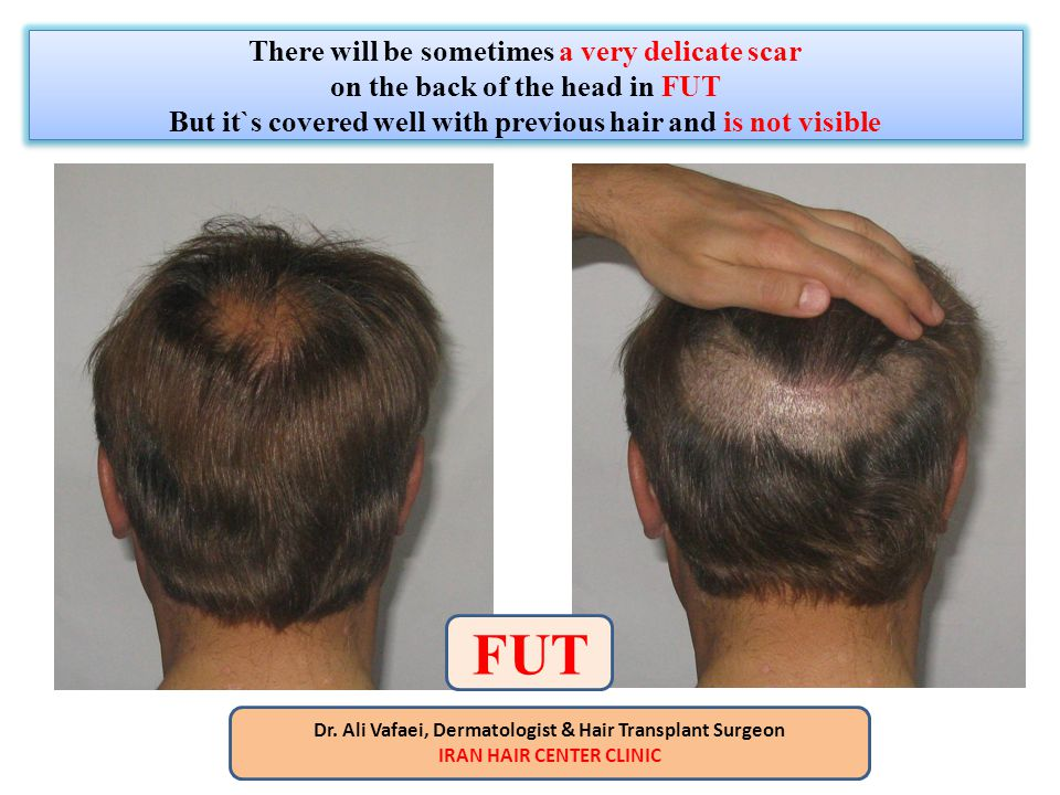 There will be sometimes a very delicate scar on the back of the head in FUT But it`s covered well with previous hair and is not visible