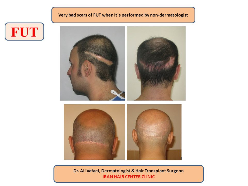 FUT Very bad scars of FUT when it`s performed by non-dermatologist