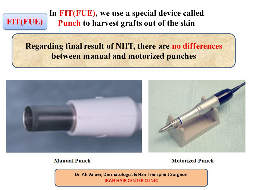 In FIT(FUE), we use a special device called Punch to harvest grafts out of the skin