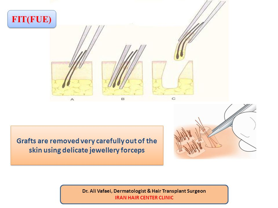 FIT(FUE) Grafts are removed very carefully out of the skin using delicate jewellery forceps. Dr. Ali Vafaei, Dermatologist & Hair Transplant Surgeon.