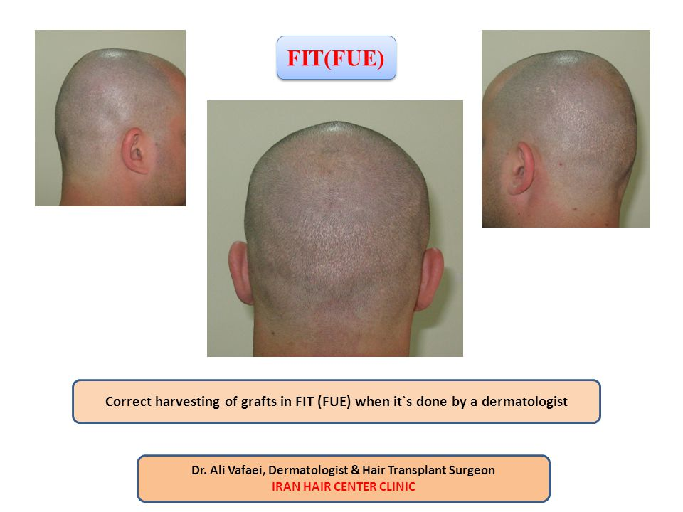 FIT(FUE) Correct harvesting of grafts in FIT (FUE) when it`s done by a dermatologist. Dr. Ali Vafaei, Dermatologist & Hair Transplant Surgeon.