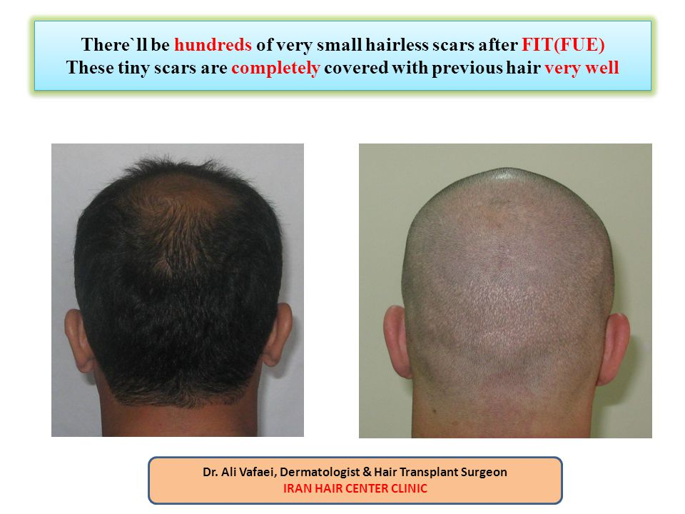 There`ll be hundreds of very small hairless scars after FIT(FUE) These tiny scars are completely covered with previous hair very well