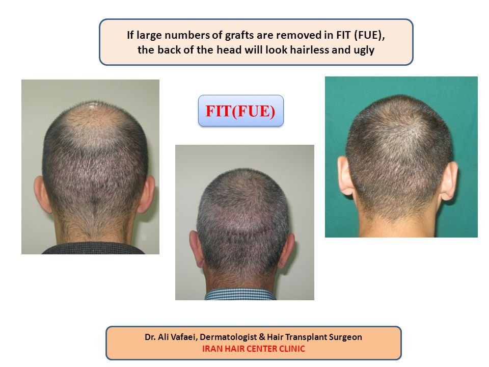 FIT(FUE) If large numbers of grafts are removed in FIT (FUE),