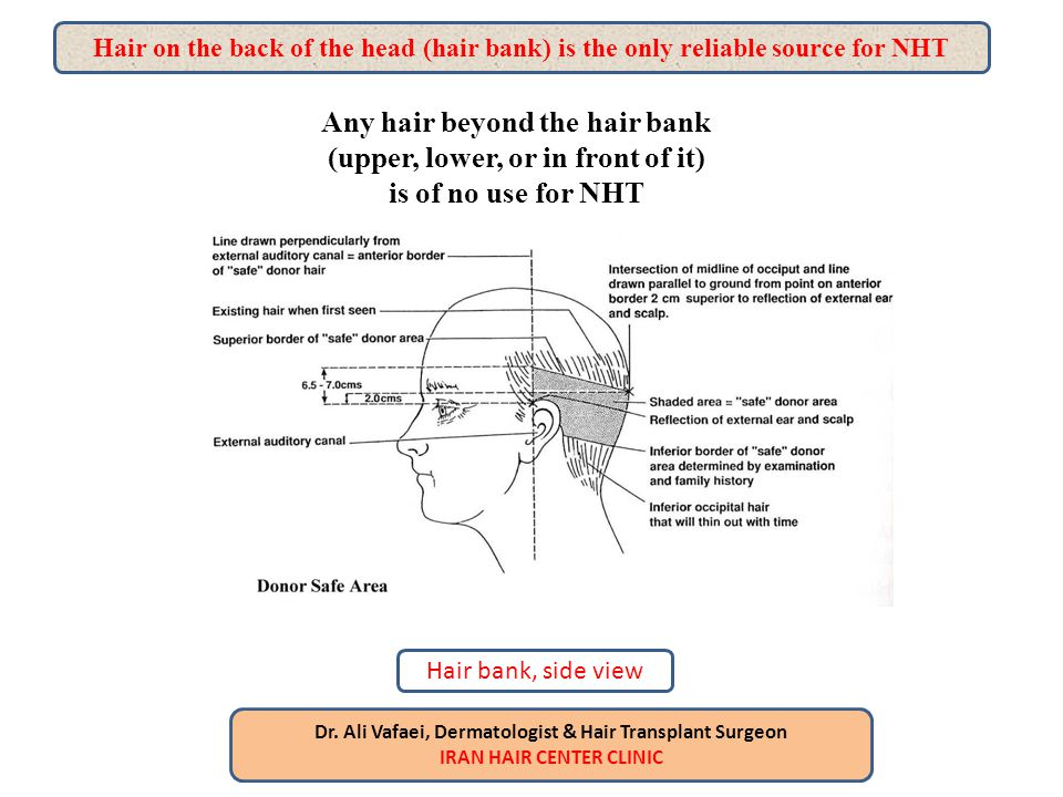 Hair on the back of the head (hair bank) is the only reliable source for NHT