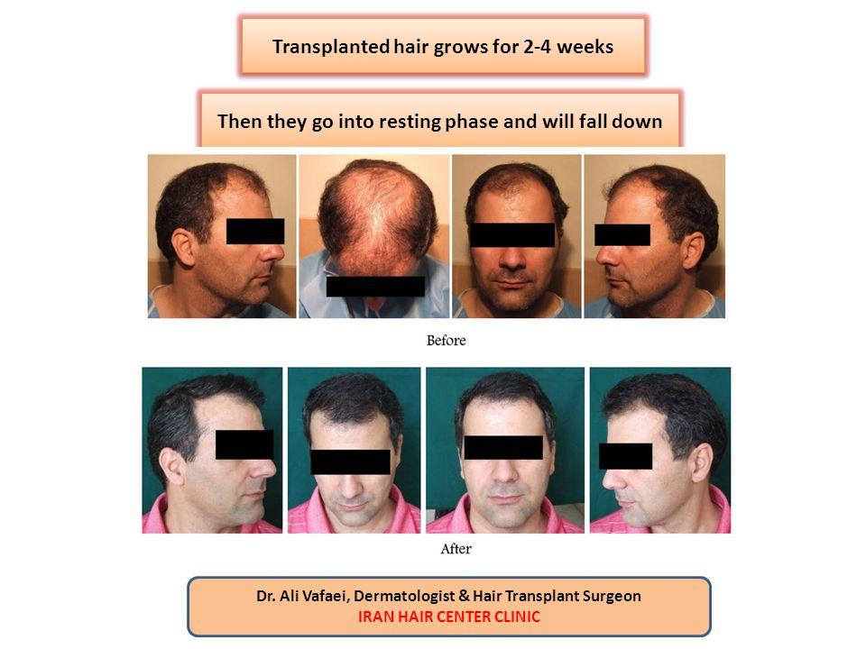 Transplanted hair grows for 2-4 weeks