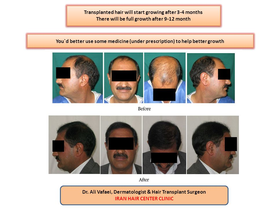 Transplanted hair will start growing after 3-4 months