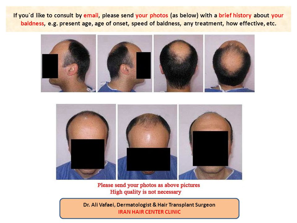 If you`d like to consult by email, please send your photos (as below) with a brief history about your baldness, e.g. present age, age of onset, speed of baldness, any treatment, how effective, etc.