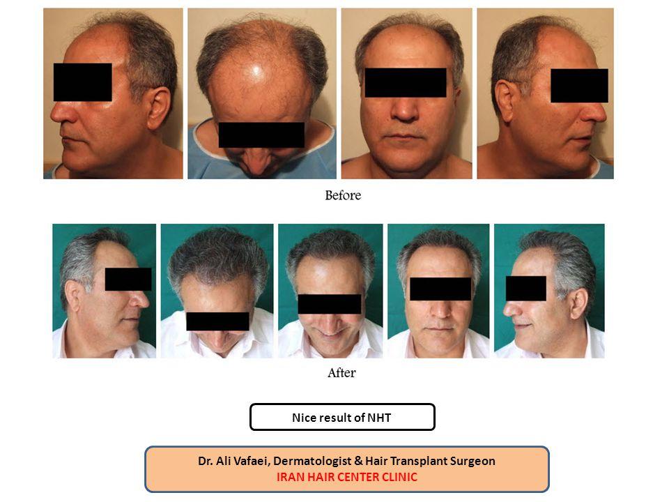 Dr. Ali Vafaei, Dermatologist & Hair Transplant Surgeon