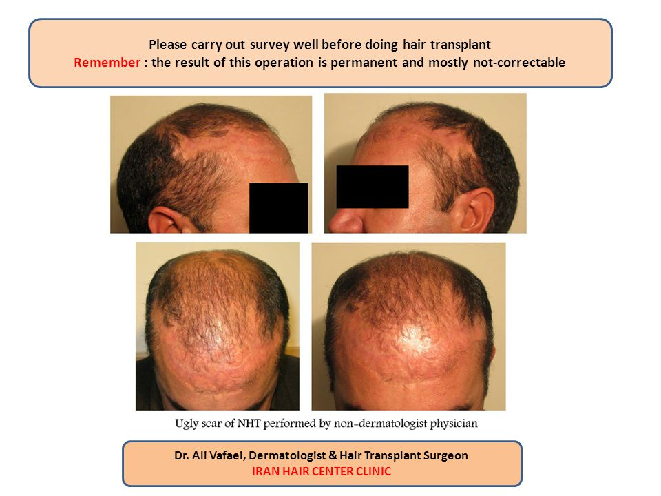 Please carry out survey well before doing hair transplant