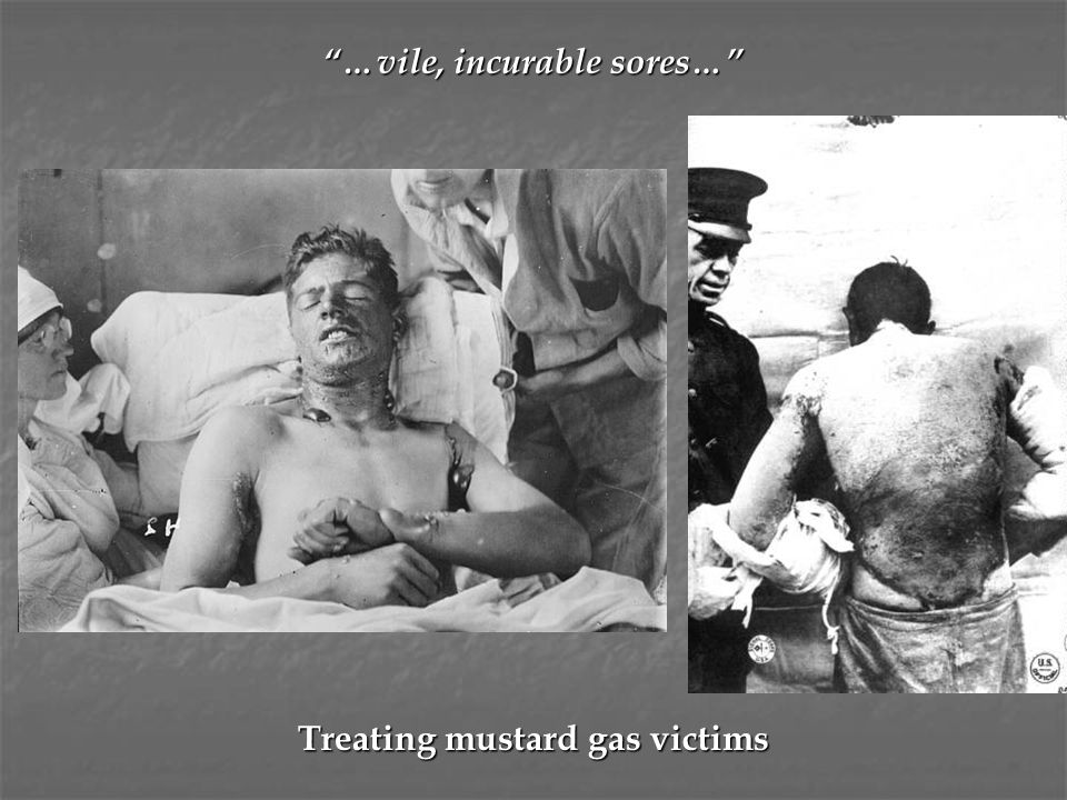 …vile, incurable sores… Treating mustard gas victims