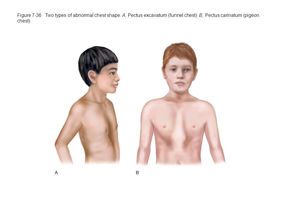 Figure 7-36 Two types of abnormal chest shape