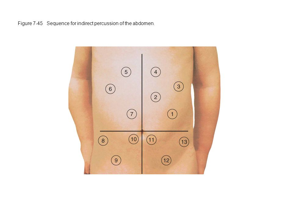 Figure 7-45 Sequence for indirect percussion of the abdomen.