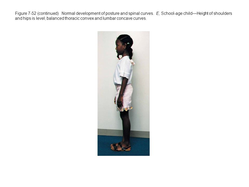 Figure 7-52 (continued) Normal development of posture and spinal curves.