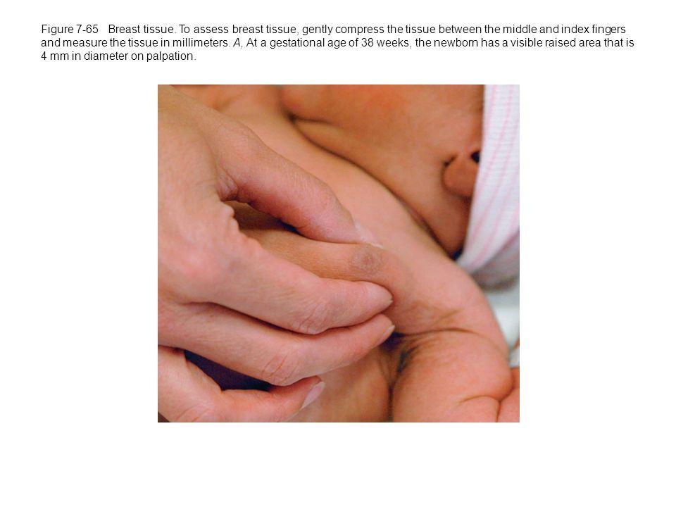 Figure 7-65 Breast tissue.