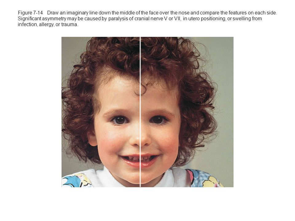 Figure 7-14 Draw an imaginary line down the middle of the face over the nose and compare the features on each side.