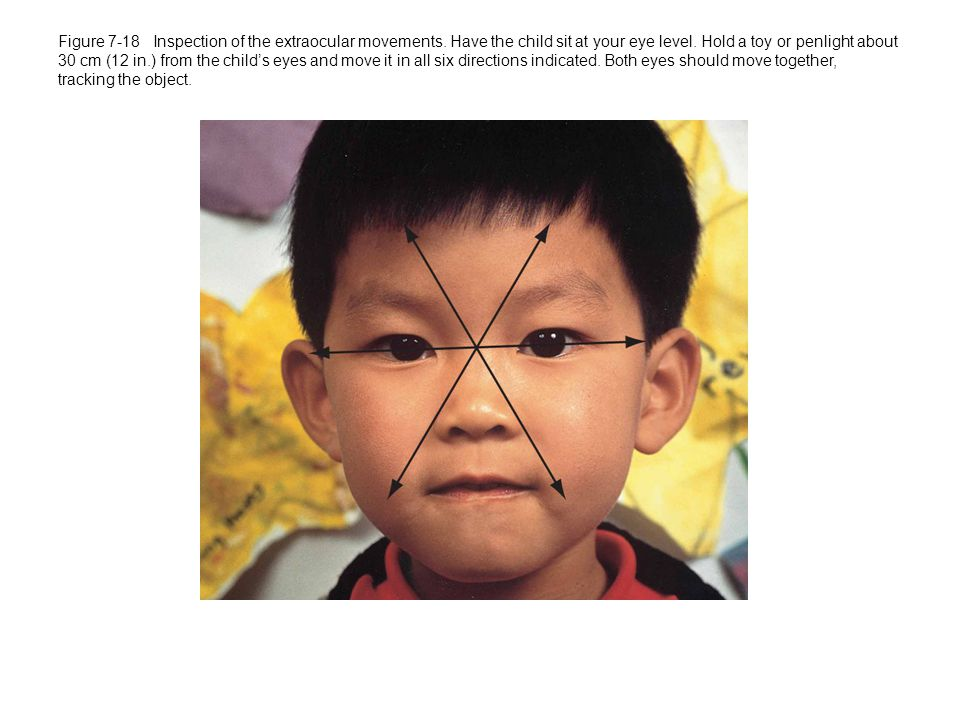 Figure 7-18 Inspection of the extraocular movements