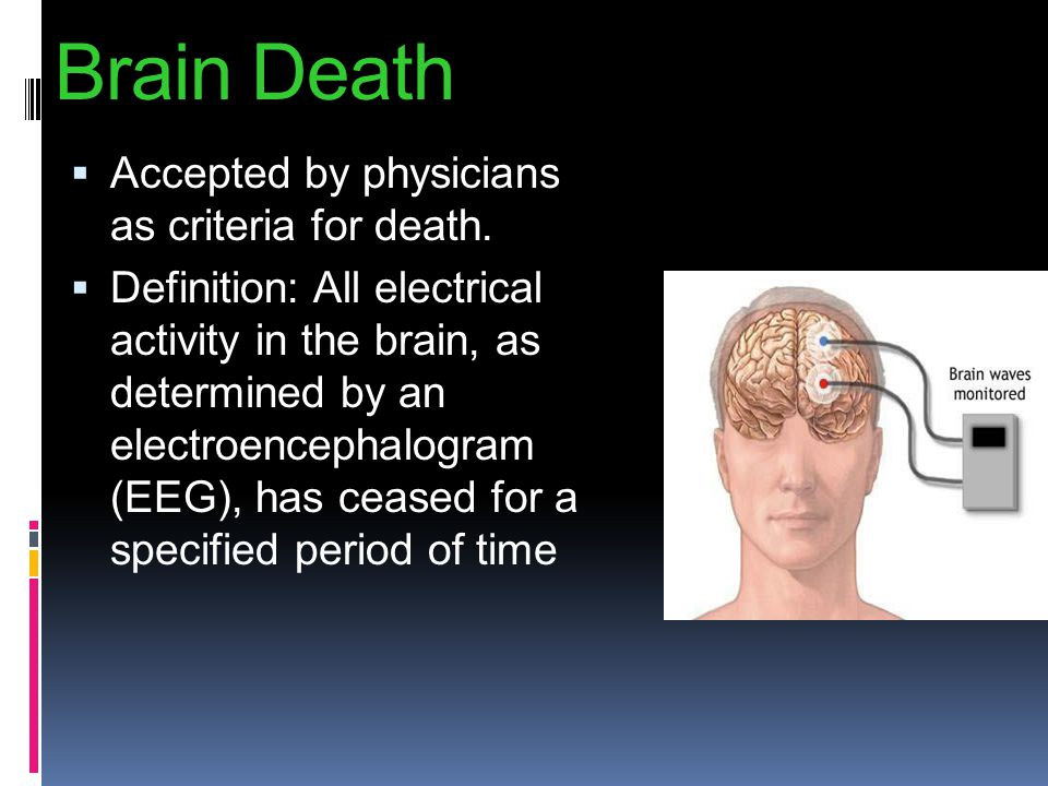 Brain Death Accepted by physicians as criteria for death.