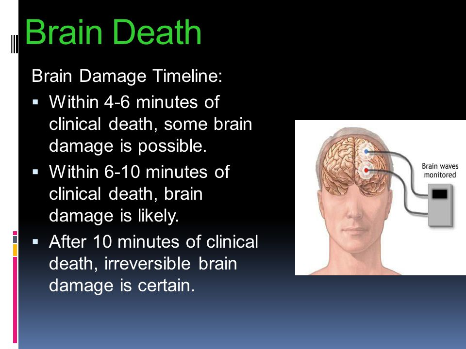Brain Death Brain Damage Timeline: