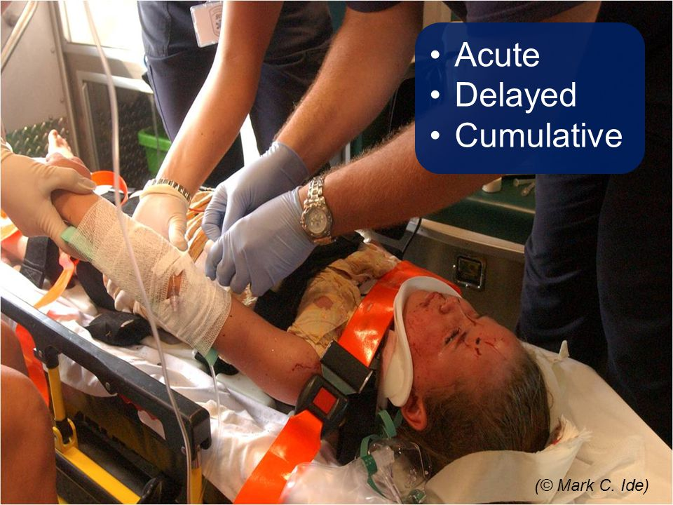 Acute Delayed Cumulative (© Mark C. Ide) Talking Points