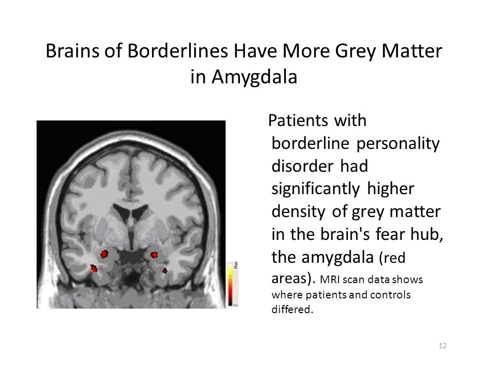Brains of Borderlines Have More Grey Matter in Amygdala