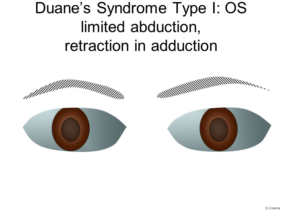 Duane's Syndrome Type I: OS limited abduction, retraction in adduction