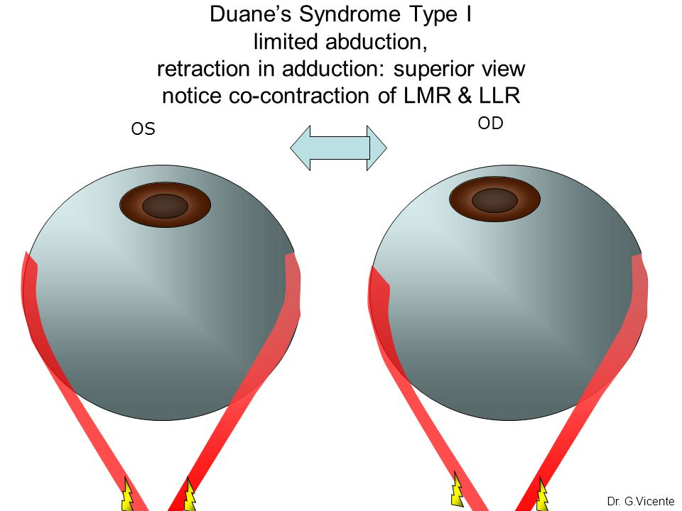 Duane's Syndrome Type I limited abduction, retraction in adduction: superior view notice co-contraction of LMR & LLR