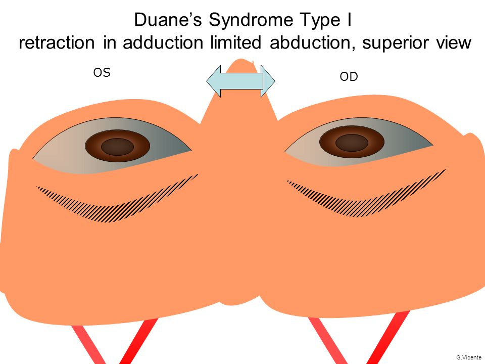 Duane's Syndrome Type I retraction in adduction limited abduction, superior view