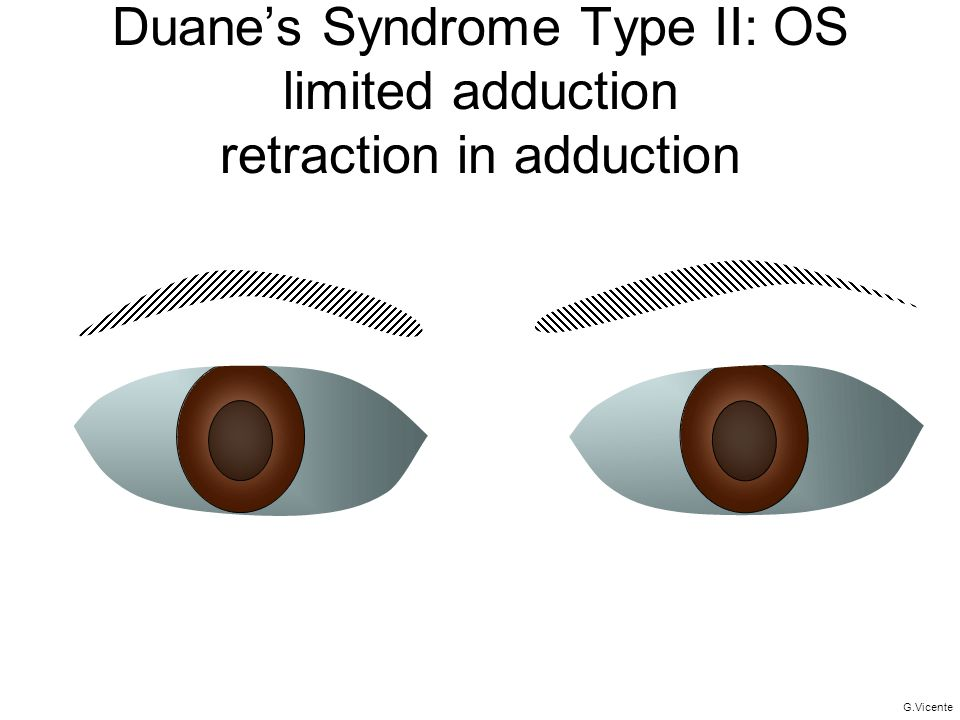 Duane's Syndrome Type II: OS limited adduction retraction in adduction