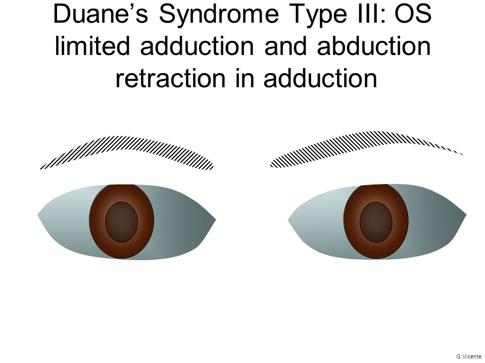 Duane's Syndrome Type III: OS limited adduction and abduction retraction in adduction