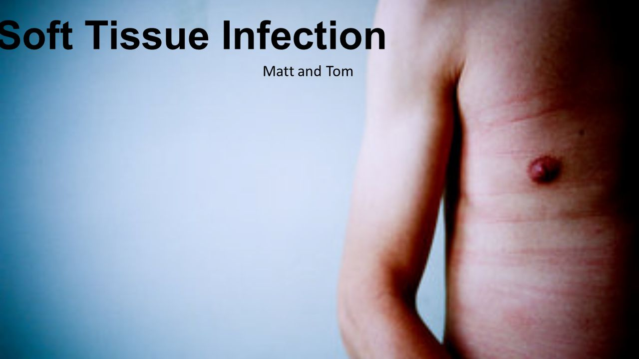 Soft Tissue Infection Matt and Tom