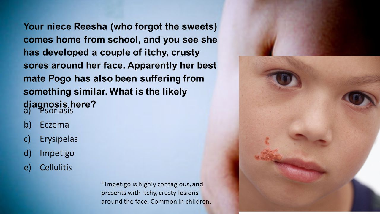Your niece Reesha (who forgot the sweets) comes home from school, and you see she has developed a couple of itchy, crusty sores around her face. Apparently her best mate Pogo has also been suffering from something similar. What is the likely diagnosis here