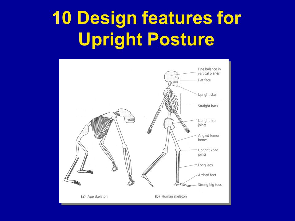10 Design features for Upright Posture