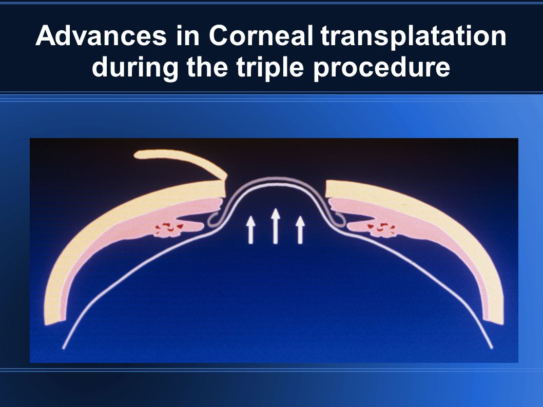 Advances in Corneal transplatation during the triple procedure