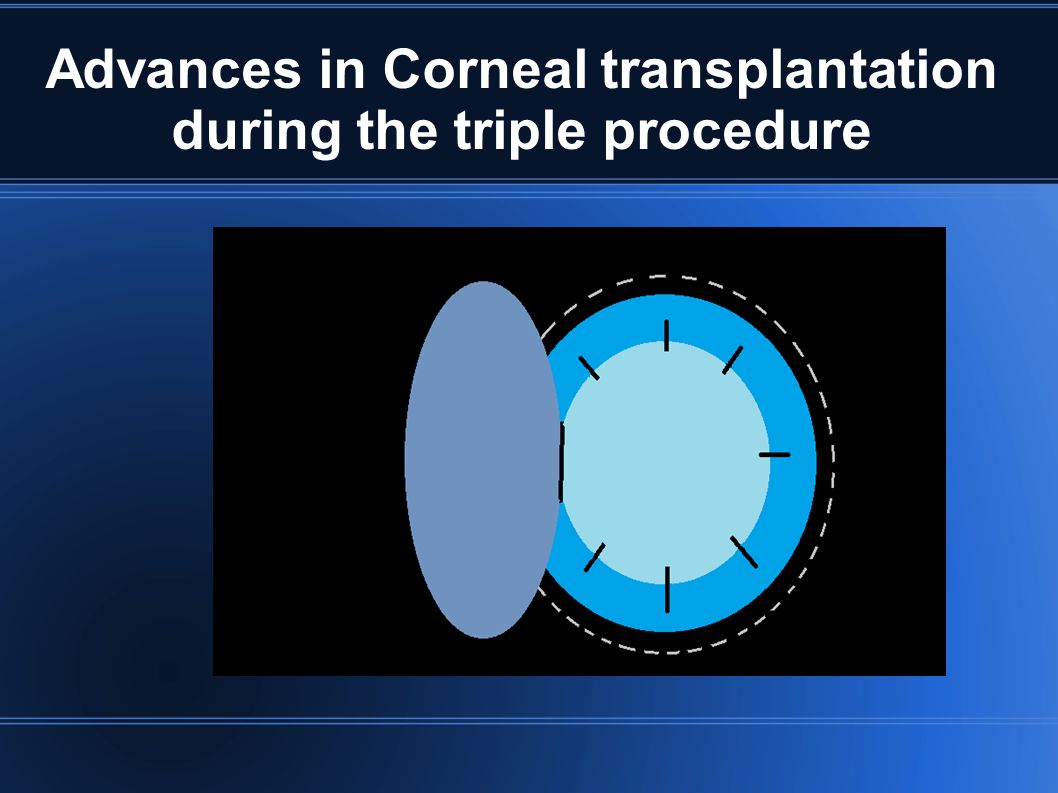 Advances in Corneal transplantation during the triple procedure