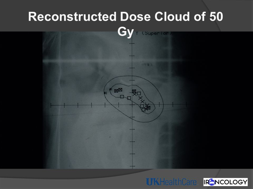 Reconstructed Dose Cloud of 50 Gy