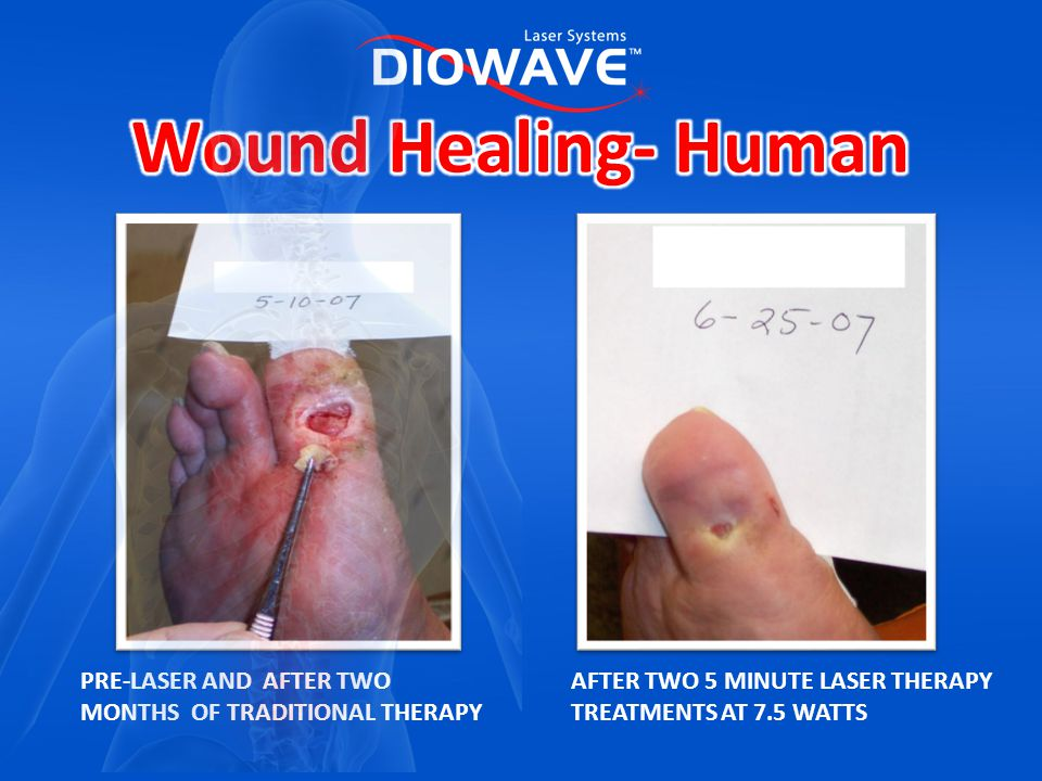 Wound Healing- Human PRE-LASER AND AFTER TWO