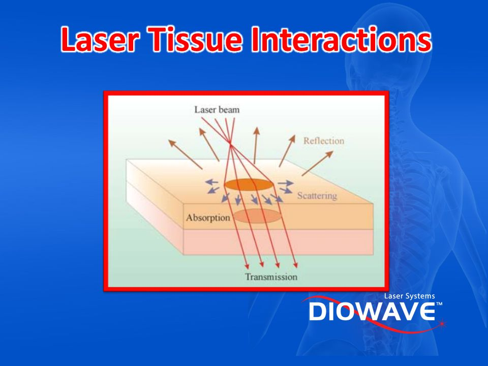 Laser Tissue Interactions