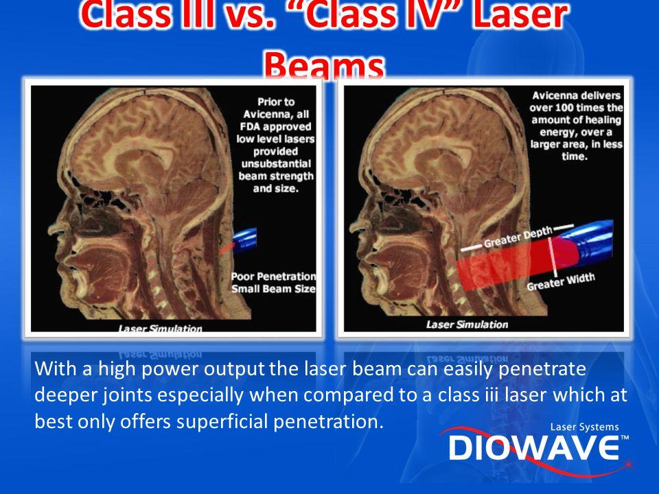 Class III vs. Class IV Laser Beams